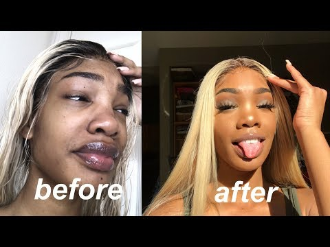 I spent $1000 to look less ugly   glow up challenge