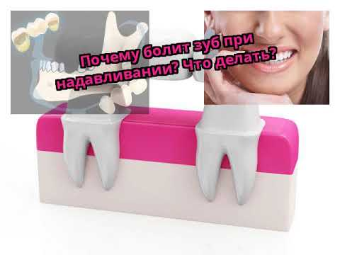 Болит при нажатии на зуб