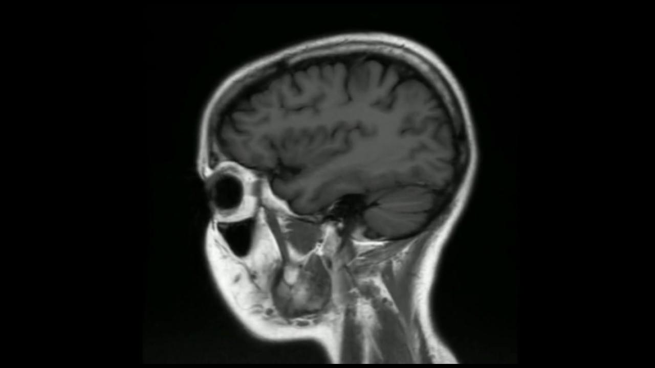 Resonancia Magnética Cerebral. Planos axial, sagital, coronal. - YouTube