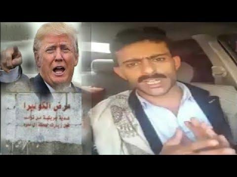 ترامب وعلاقته بانتشار مرض الكوليرا في اليمن عيسى العذري يوضح هذه العلاقة