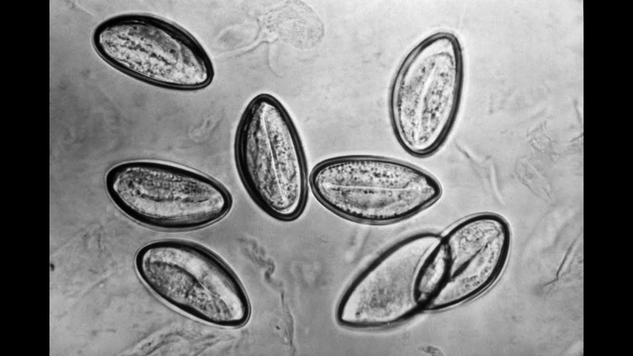 Pinworms: mik azok és milyen tünetek - Gyomorhurut Pinworms hány tojást