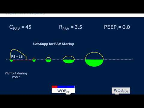 PAV+ For Prolonged Weaning Protocol: Video 3