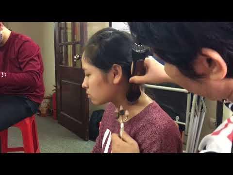 Chia sẻ cách giảm chứng đau mỏi vai gáy bằng Diện Chẩn