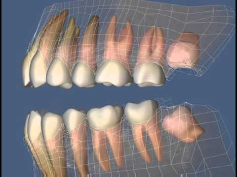 Видео ретенция зуба