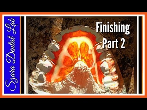 How to Finish Orange Retainer design #2 of 2 szara dental ortho