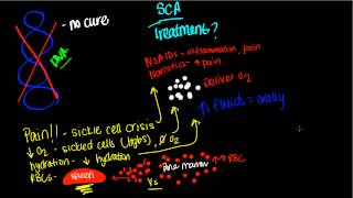 Treatment of Sickle Cell Anemia
