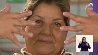 De artritis del reumatoide edema pedal