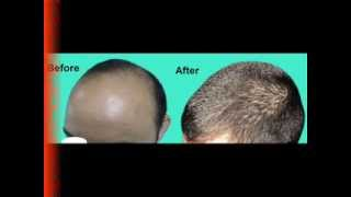 Hair Transplantation Surgery Procedure at Hair Transplant Delhi Thumbnail