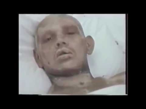 People affected by radiation during Chernobyl disaster. Radiation sickness. Part 1.
