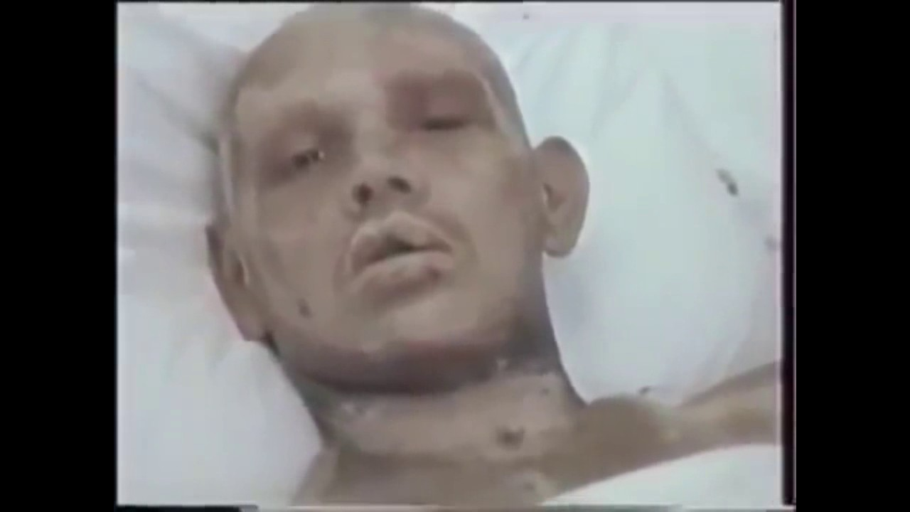 People affected by radiation during Chernobyl disaster Radiation sickness Part 1  YouTube