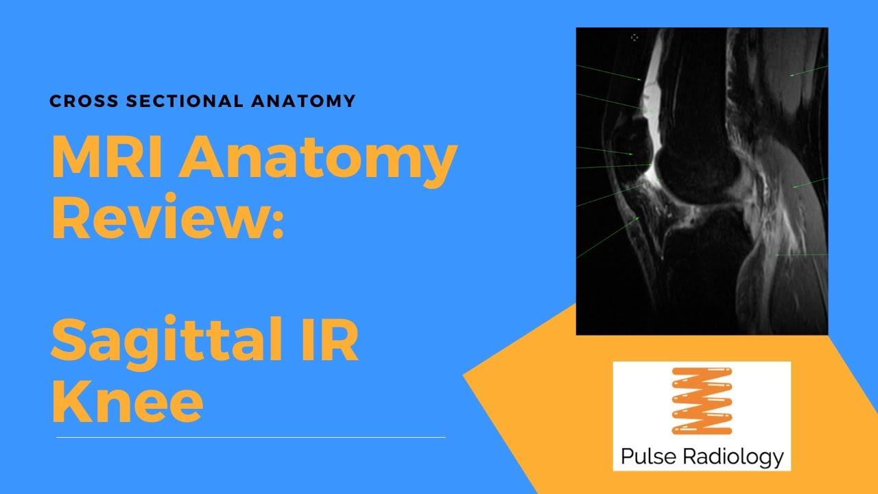 MRI Knee Sagittal IR Anatomy in under 60 Seconds #MedicalRadiology
