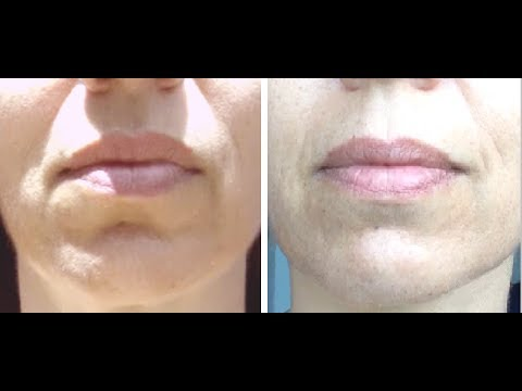 Fight Marionette and Lip Lines with this Quick Exercise