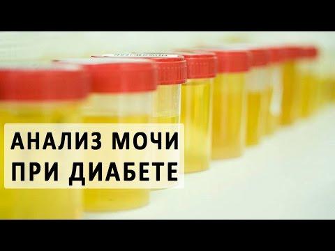 Анализ на общий белок крови: норма, повышенный, пониженный