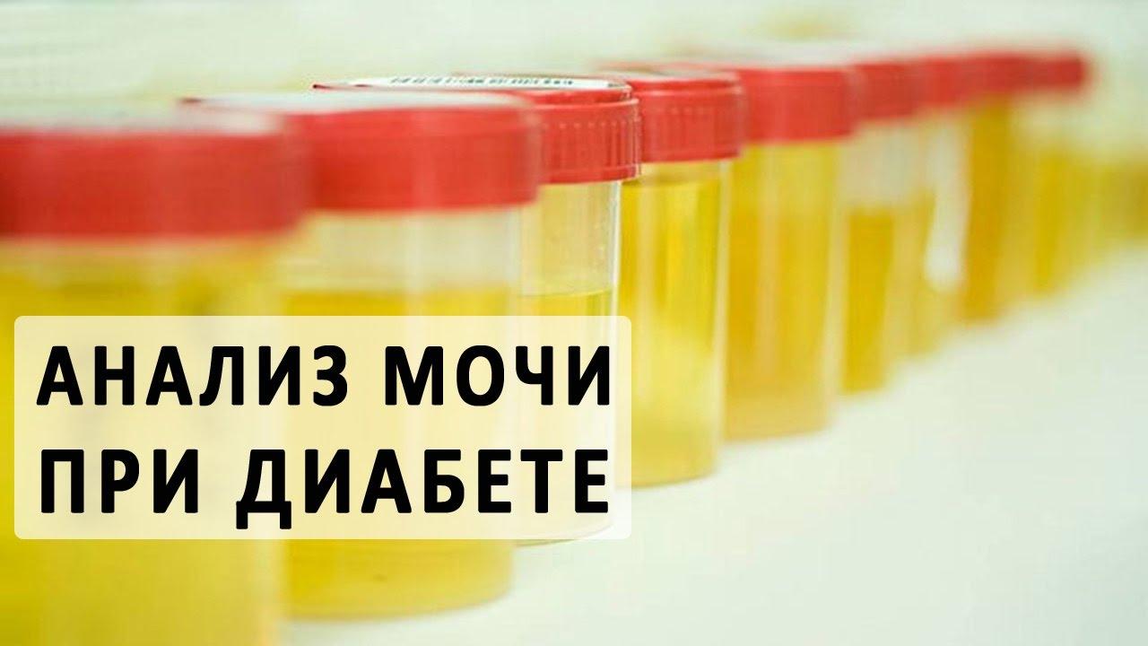 Методы исследования при сахарном диабете у детей