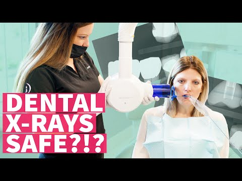 Dental Xrays SAFE? (How often and why for dental health and oral health?) - EP 06 The Dental Drive