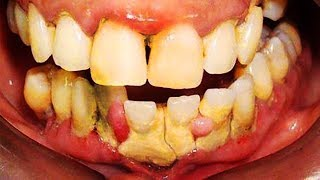Worst Dental Plaque in YouTube History! (Teeth Whitening)