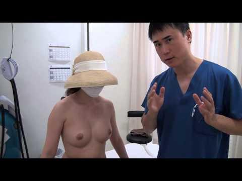 高須クリニック 豊胸手術後6カ月の経過 乳腺下にシリコンプロテーゼ245cc 腫れ、痛み、ダウンタイム 美容整形外科動画