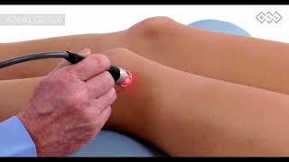 Diz artriti tedavisi Yüksek Yoğunluklu Lazer
