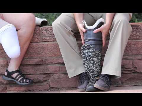 Prosthesis Sock Ply Management