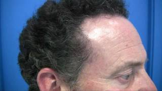 New York Hair Transplant Result 1-800-859-2266