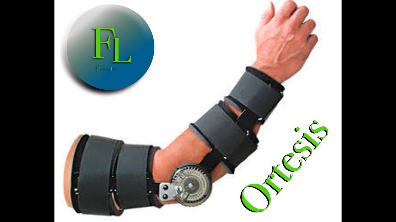tipos de ortesis Las ortesis de miembros superiores también se utilizan frecuentemente en  el  término ortesis o férulas semidinámicas se refiere al tipo de dispositivos que.
