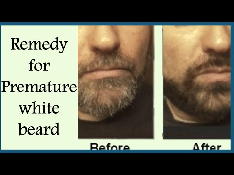 Magical Remedies For PREMATURE GREY BEARD/Remove WHITE HAIRS On Face Permanently/Grey Hair Remedies from YouTube · Duration:  3 minutes 31 seconds
