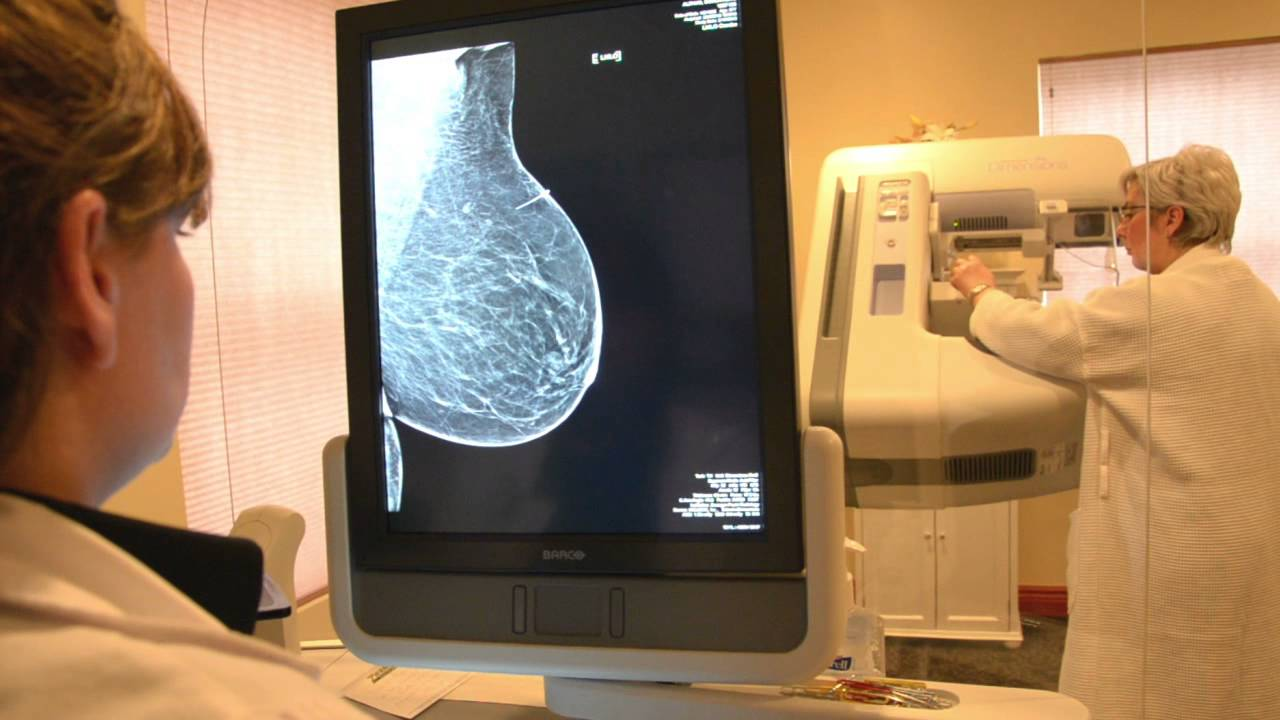 tomosynthesis 3d mammography The women's imaging center at newton-wellesley hospital is now offering 3d mammography, called tomosynthesis newton-wellesley hospital strives to offer.