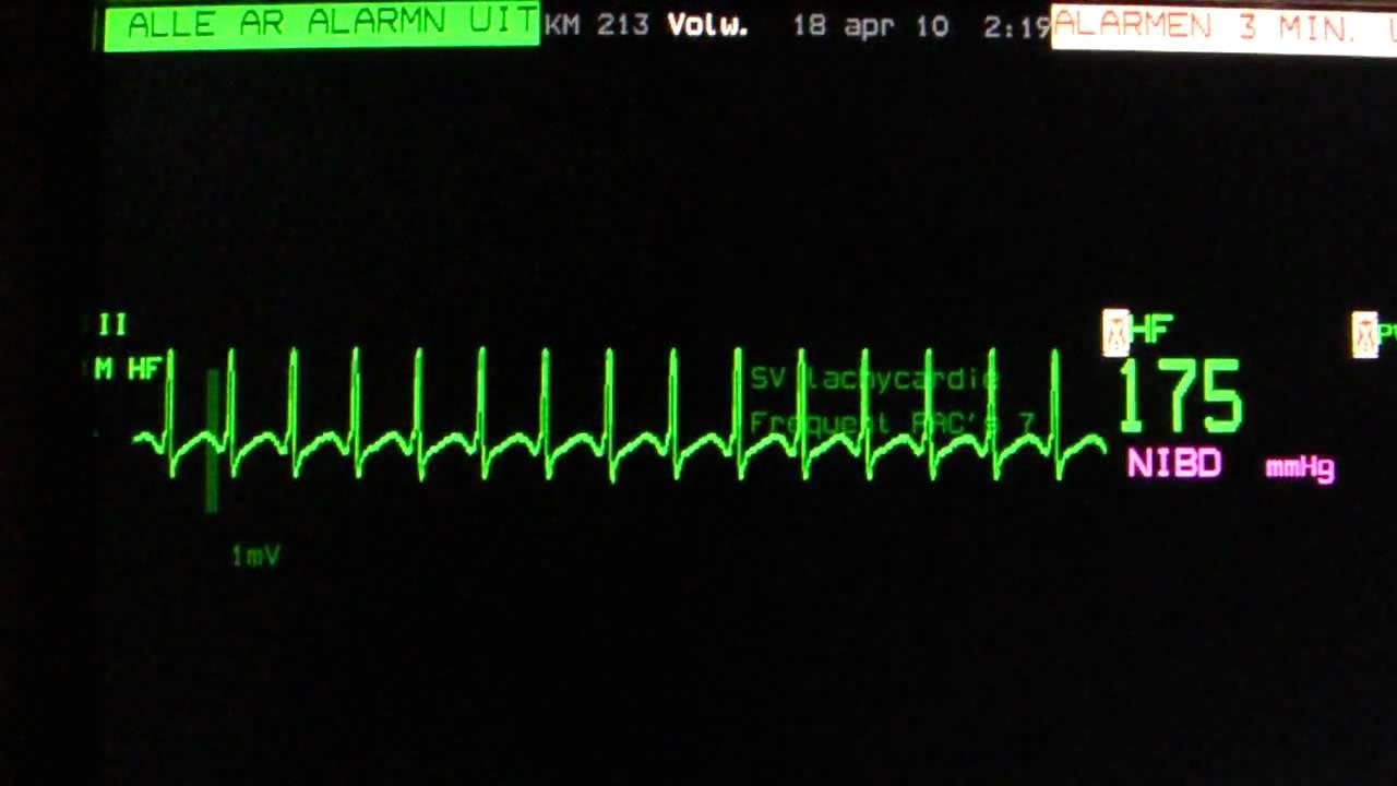 av nodal reentry tachycardia avnrt on an ecg heart