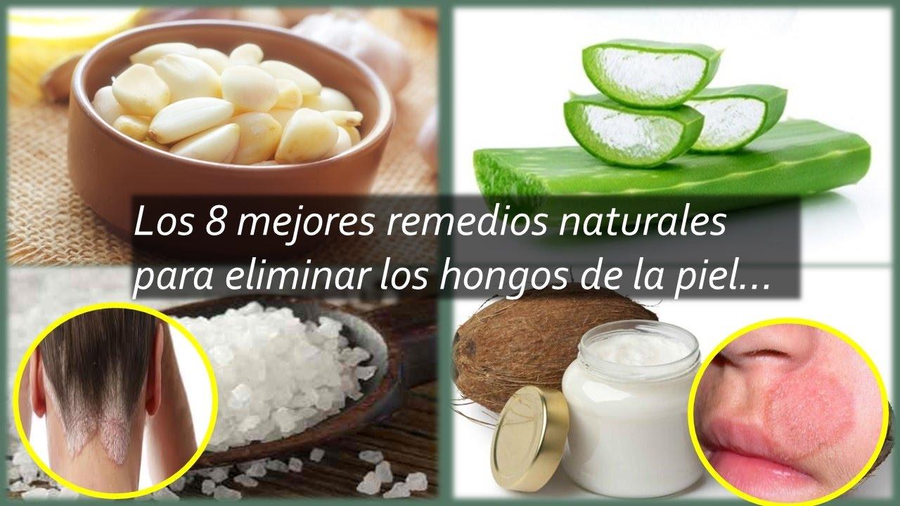 Remedios caseros para eliminar hongos de piel