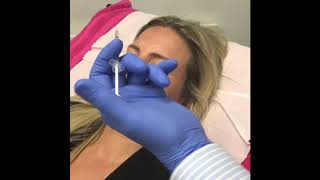 Simple Botox Treatment for Upper Face thumbnail