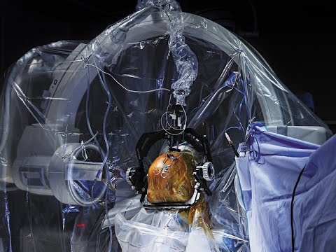 What is Deep Brain Stimulation? What is price of Deep Brain Stimulation?
