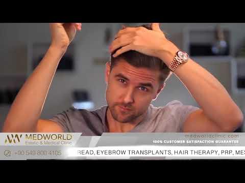 Hair Health &Transplants - Medworld Health & Rehabilitation center