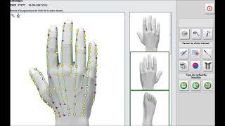 metatron hunter mesure les points d'acupuncture