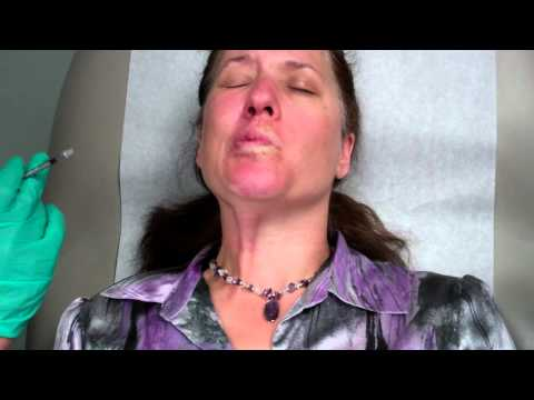 Botox Treatment for Bells Palsy
