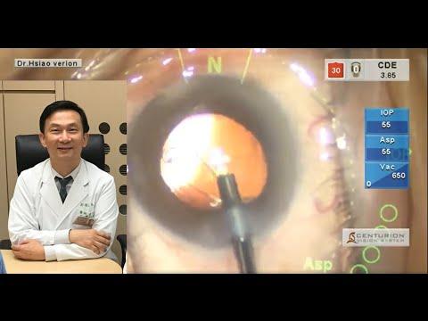 微創白內障手術植入懸韌帶加強環