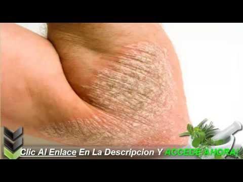 Atopichesky la dermatitis en los análisis