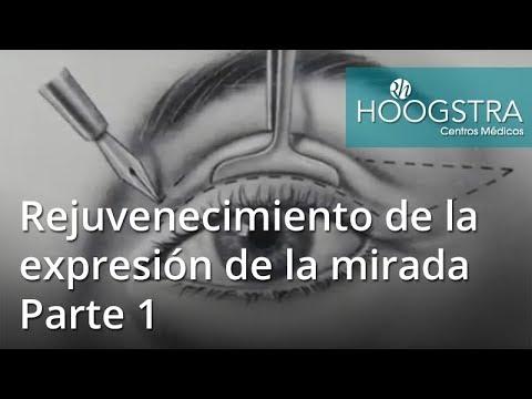 Rejuvenecimiento de la expresión de la mirada - Parte 1 (18068)