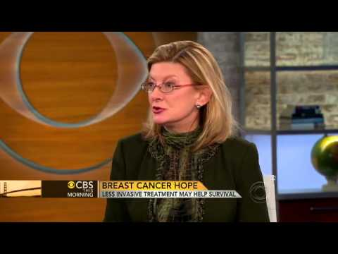 Dr. Rache Simmons - Less Invasive Treatment Option for Breast Cancer thumbnail