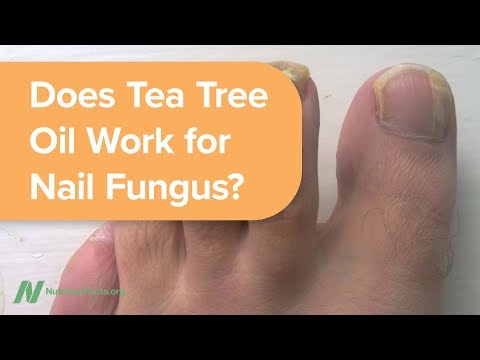 Does Tea Tree Oil Work for Nail Fungus?