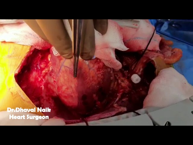 How the damaged heart looks like after Myocardial (Heart) attack