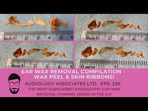 EAR WAX REMOVAL COMPILATION - WAX PEEL & SKIN RIBBON - EP236