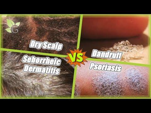 Dry Scalp -vs- Dandruff -vs- Seborrheic Dermatitis -vs- Psoriasis