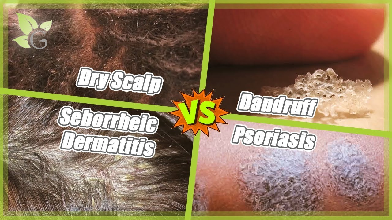 Dry Scalp -vs- Dandruff -vs- Seborrheic Dermatitis -vs- Psoriasis