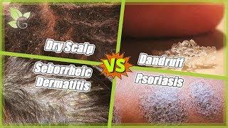 The Scalp (Part 3/3) ~ Dry Scalp, Dandruff, Seborrheic Dermatitis and Psoriasis Thumbnail