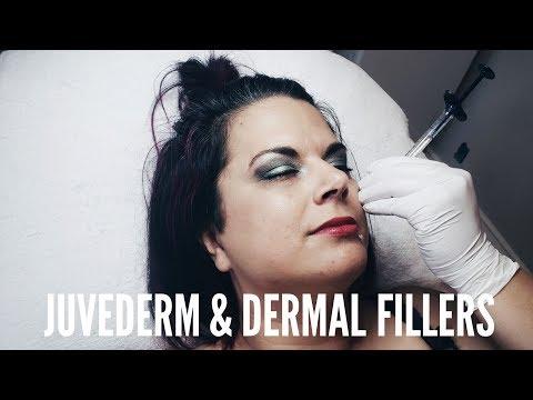 Juvederm Dermal Fillers by Sparkle Lifestyle & MediSpa