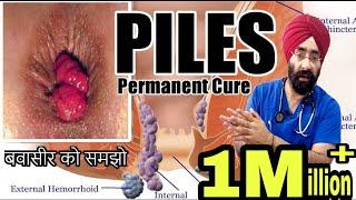 बवासीर | Piles | Hemorrhoids : समझो कारन से इलाज तक । १००% विज्ञान | हिंदी में | Dr.Education
