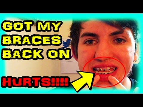 GOT MY BRACES BACK ON!!! FAN FUNDING GONE, SUPER CHAT INSTEAD, AND MY SURGERY!!!