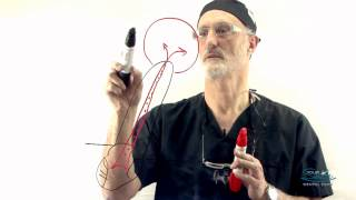 Dr. Sam Axelrod Speaks - Root Canal Treatment Procedure