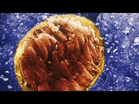 A Brain Parasite Might Be Making Us Angrier - Newsy