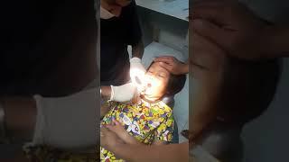 Damia Safiya 1st time cabut gigi..3 batang terus lak tu...